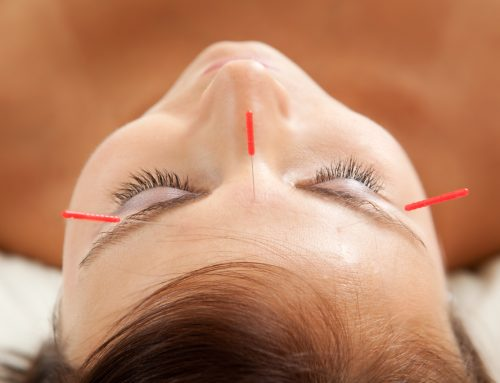 Can Acupuncture Help an Alzheimer's Patient?